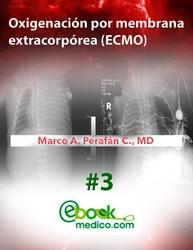Oxigenación por membrana extracorpórea (ECMO) No 3